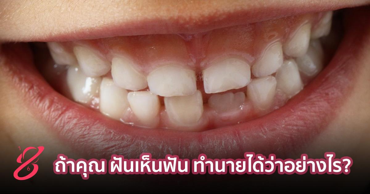 ถ้าคุณ ฝันเห็นฟัน ทำนายได้ว่าอย่างไร?